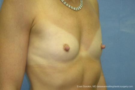 Breast Augmentation 8667 - Before Image 2