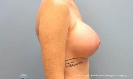 Philadelphia Breast Augmentation 9371 -  After Image 3