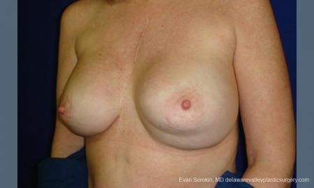 Philadelphia Breast Augmentation 9457 - Before Image 2