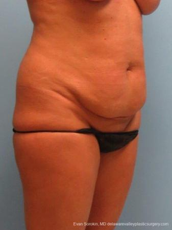 Philadelphia Abdominoplasty 9463 - Before Image 2