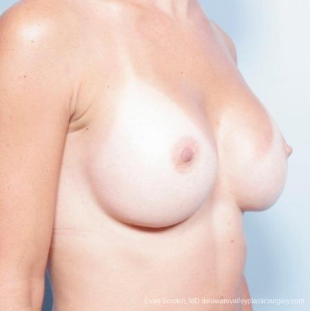 Philadelphia Breast Augmentation 8652 -  After Image 2