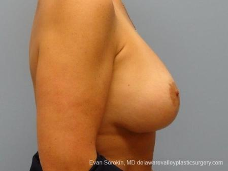 Philadelphia Breast Lift and Augmentation 8696 -  After Image 4