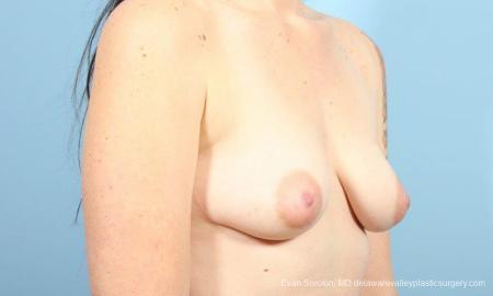 Philadelphia Breast Augmentation 9346 - Before Image 2