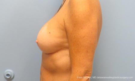 Philadelphia Breast Augmentation 9549 -  After Image 5