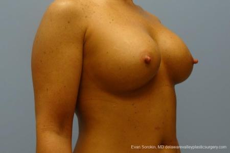 Philadelphia Breast Augmentation 8774 -  After Image 2