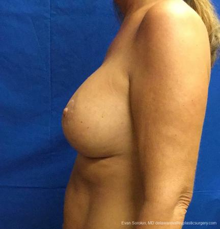 Philadelphia Breast Lift and Augmentation 13068 -  After Image 5