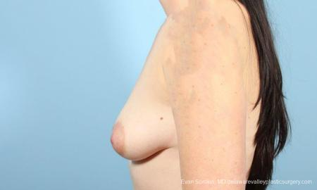 Philadelphia Breast Augmentation 9346 - Before and After Image 5