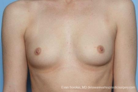 Philadelphia Breast Augmentation 8771 - Before Image 1