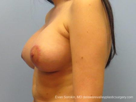 Philadelphia Breast Lift and Augmentation 10115 -  After Image 4