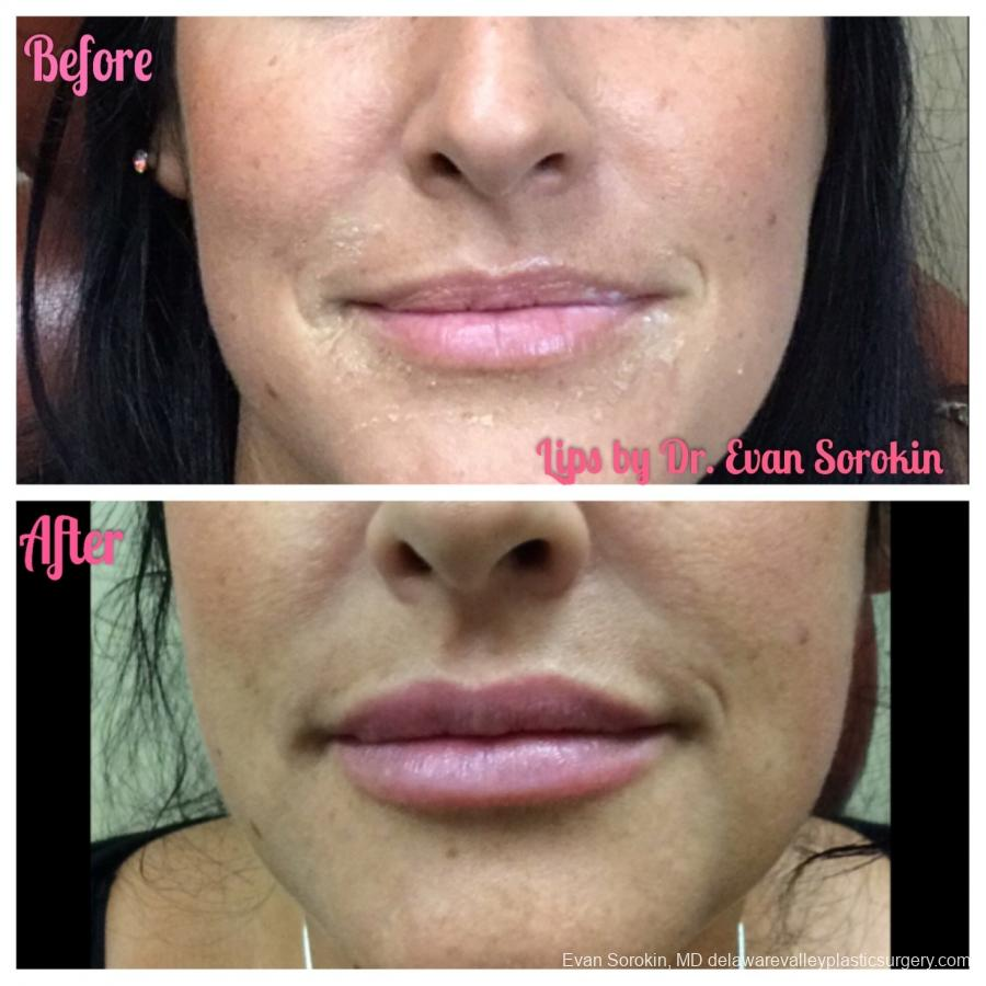 Lip Augmentation: Patient 3 - Before and After Image