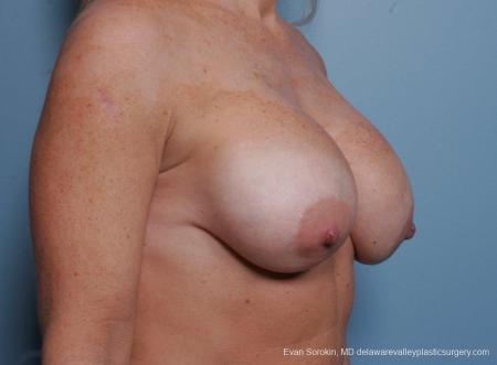 Philadelphia Breast Lift and Augmentation 8690 - Before Image 2