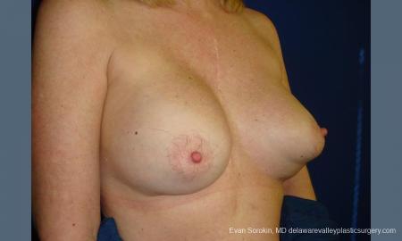 Philadelphia Breast Augmentation 9457 - Before Image 4