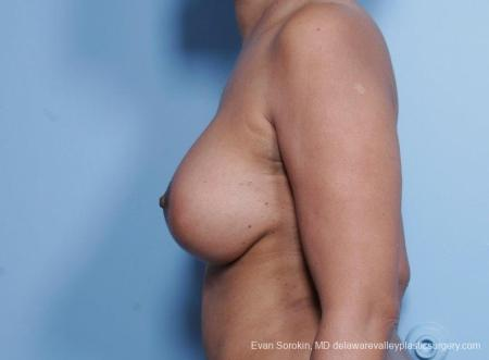 Philadelphia Breast Lift and Augmentation 8692 -  After Image 5