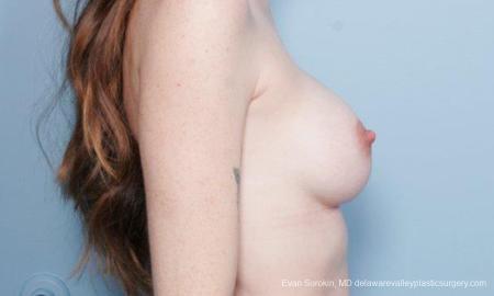 Philadelphia Breast Augmentation 8649 -  After Image 3