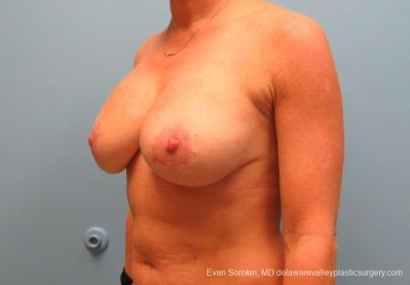 Philadelphia Breast Lift and Augmentation 8690 -  After Image 3