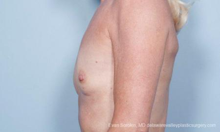 Philadelphia Breast Augmentation 9415 - Before and After Image 5