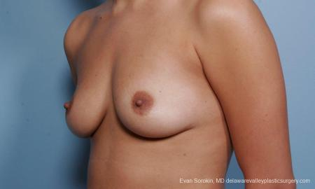 Philadelphia Breast Augmentation 9373 - Before Image 4