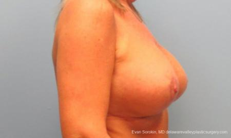 Philadelphia Breast Lift and Augmentation 9398 -  After Image 3