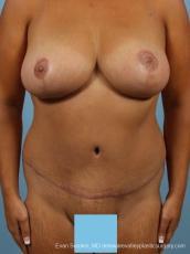 Philadelphia Mommy Makeover 8699 - After Image