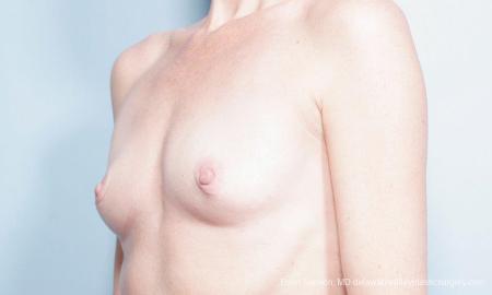 Philadelphia Breast Augmentation 9359 - Before Image 4