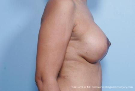 Philadelphia Breast Lift and Augmentation 8692 -  After Image 4