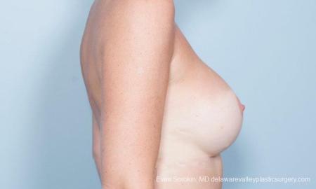 Philadelphia Breast Augmentation 8777 -  After Image 4