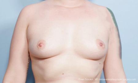 Philadelphia Breast Augmentation 9419 - Before Image 1