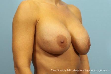 Philadelphia Breast Augmentation 8709 - Before Image 2