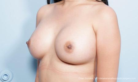 Philadelphia Breast Augmentation 9298 -  After Image 4