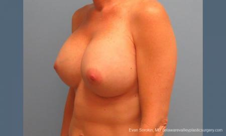 Philadelphia Breast Augmentation 9456 -  After Image 4