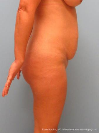 Philadelphia Abdominoplasty 9460 - Before Image 3