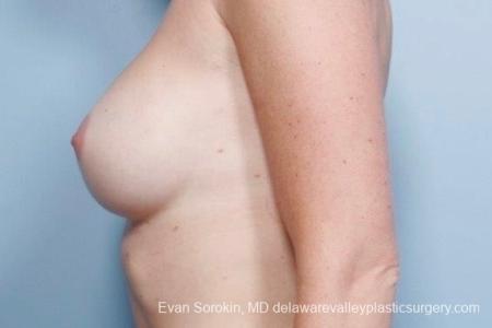 Philadelphia Breast Augmentation 8776 -  After Image 5