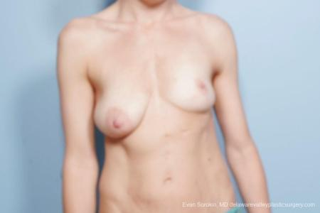 Philadelphia Breast Lift and Augmentation 8694 - Before Image 1