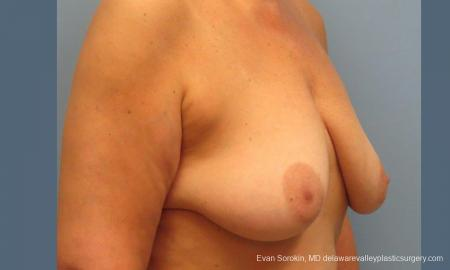 Philadelphia Breast Lift and Augmentation 9431 - Before Image 2