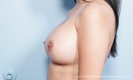 Philadelphia Breast Augmentation 9298 -  After Image 5