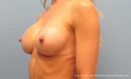 Philadelphia Breast Augmentation 9397 -  After Image 4