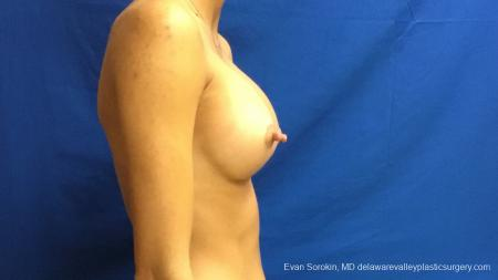 Philadelphia Breast Augmentation 13176 -  After Image 3