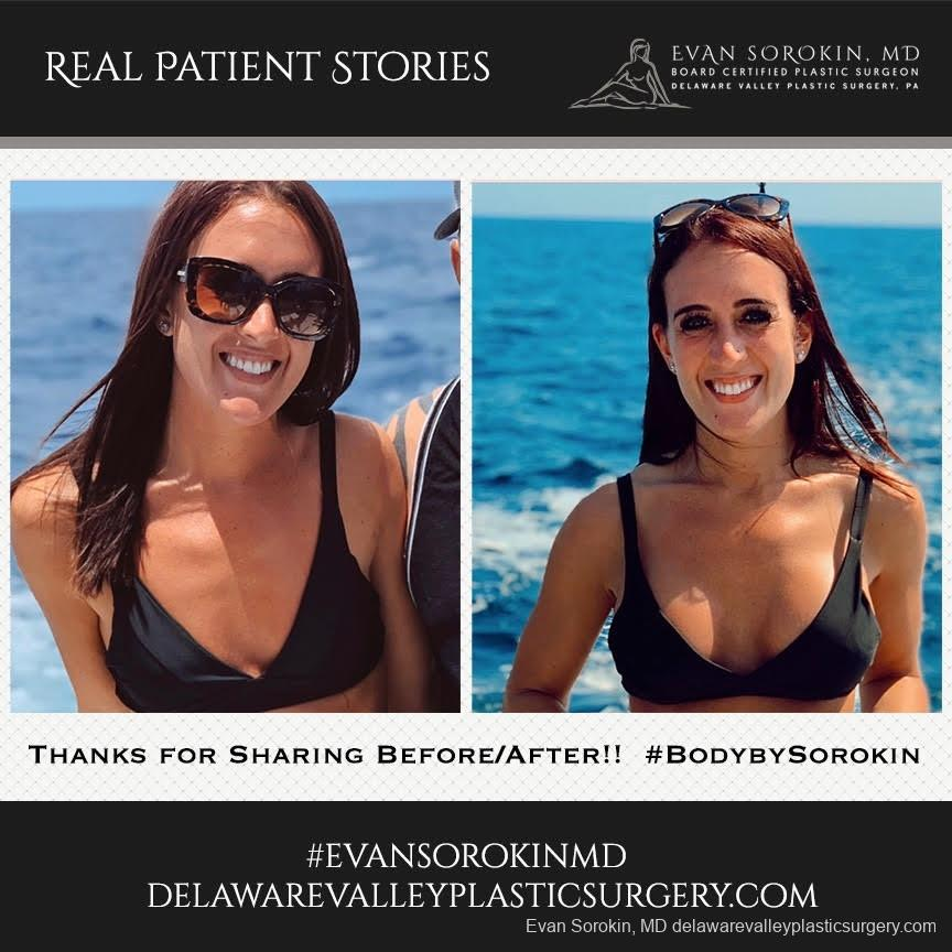 Real Patient Stories: Patient 18 - Before and After Image 1