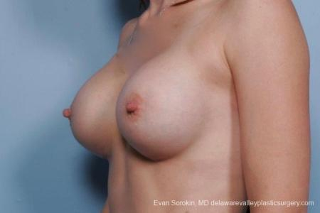 Philadelphia Breast Augmentation 8767 -  After Image 3