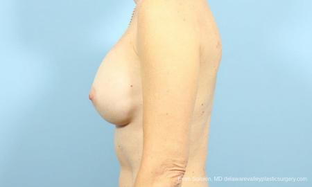 Philadelphia Breast Augmentation 9456 - Before and After Image 5