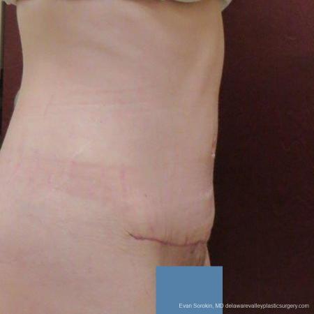 Philadelphia Abdominoplasty 9465 -  After Image 3