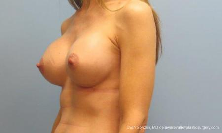 Philadelphia Breast Augmentation 9368 -  After Image 4
