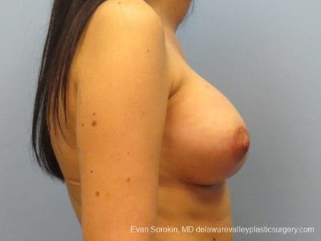 Philadelphia Breast Lift and Augmentation 10115 -  After Image 3
