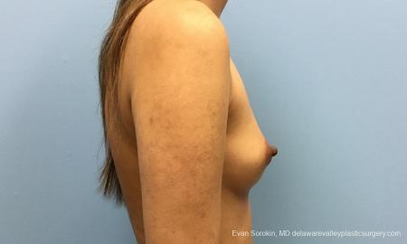Philadelphia Breast Augmentation 12515 - Before Image 4