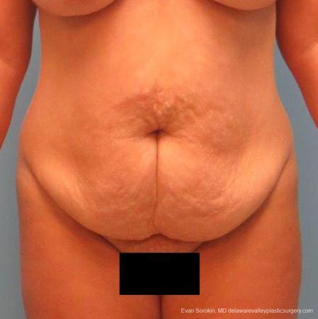 Philadelphia Abdominoplasty 9267 - Before Image 1