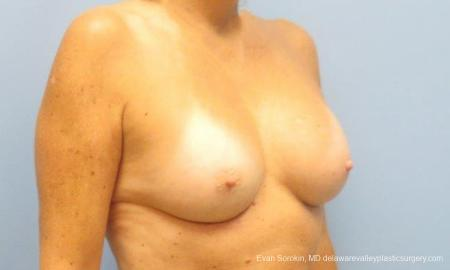 Philadelphia Breast Augmentation 9600 -  After Image 2