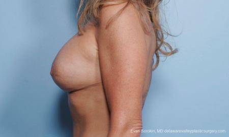 Philadelphia Breast Lift and Augmentation 9453 -  After Image 4