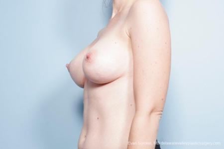 Philadelphia Breast Lift and Augmentation 8686 -  After Image 3