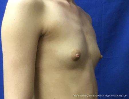 Breast Augmentation: Patient 160 - Before and After Image 2