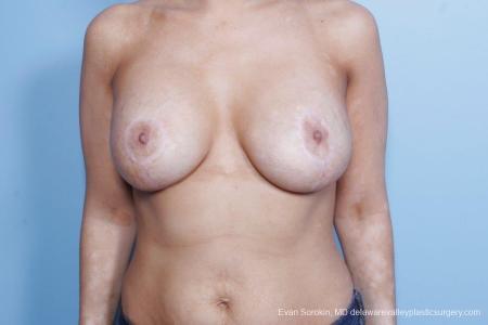 Philadelphia Breast Lift and Augmentation 8688 -  After Image 1